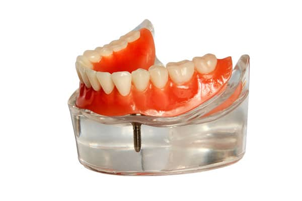 Implant Dentures St. Catharines