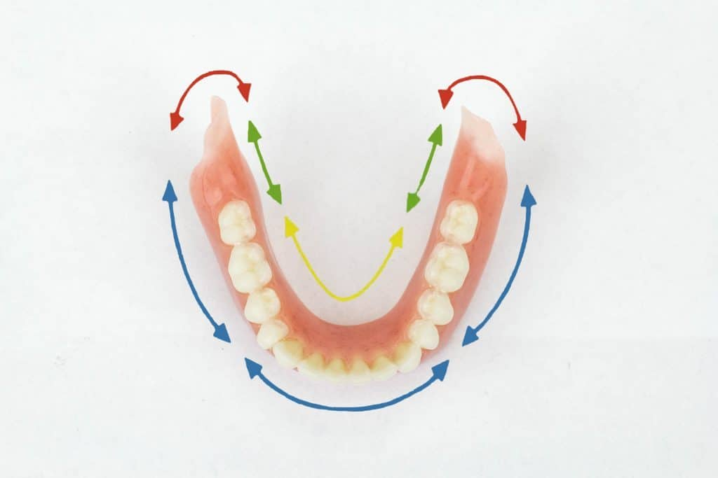 Suction Dentures St Catherines