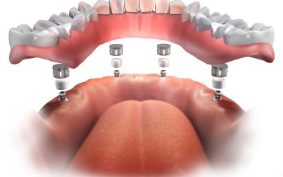 Implant Supported Dentures Procedure in St. Catharines