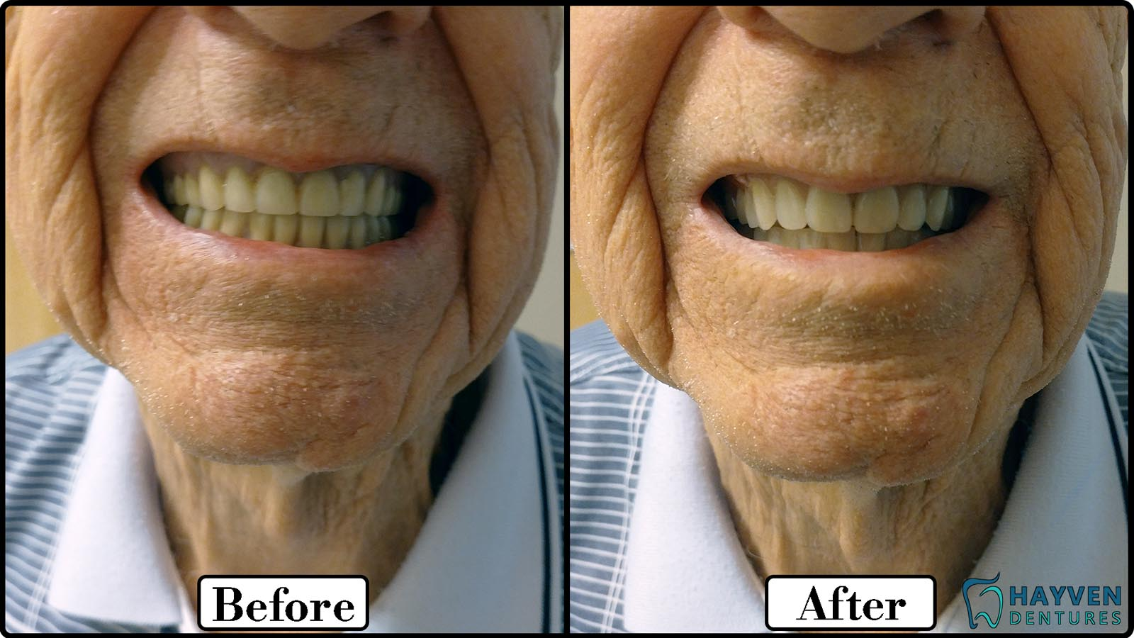 Dentures St Catharines