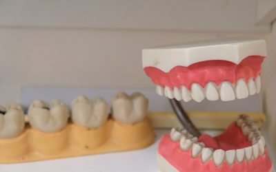 How Partial Dentures Can Save You Thousands of Dollars In The Long Run